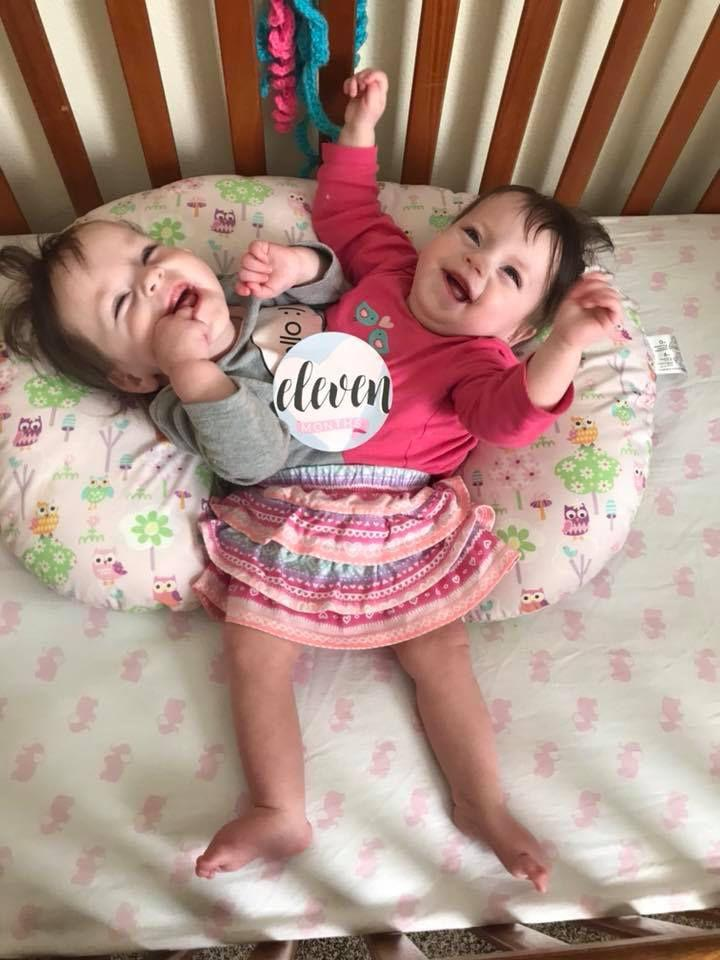 conjoined twins in blackfoot continue to beat the odds the